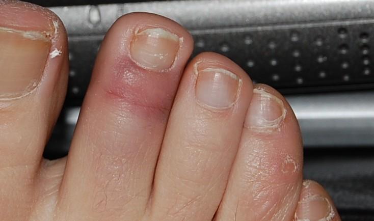 Hurt toe